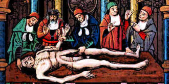 Medieval-Doctors-Dissection-of-a-Cadaver